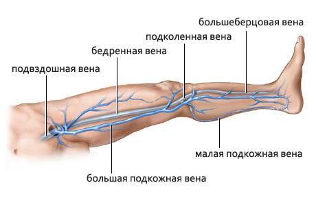 Кровотечение из варикозно расширенных вен нижних конечностей