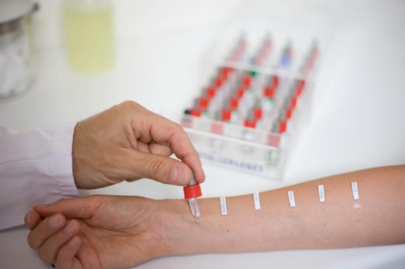 сдать пробы на аллергены спб