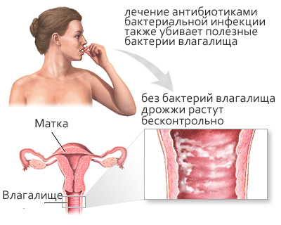 masturbatsiya-devushki-krupno